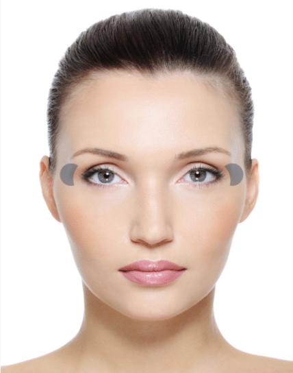 Skin Mapping Schläfen