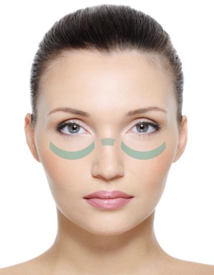 Skin Mapping Obere Wangenknochen