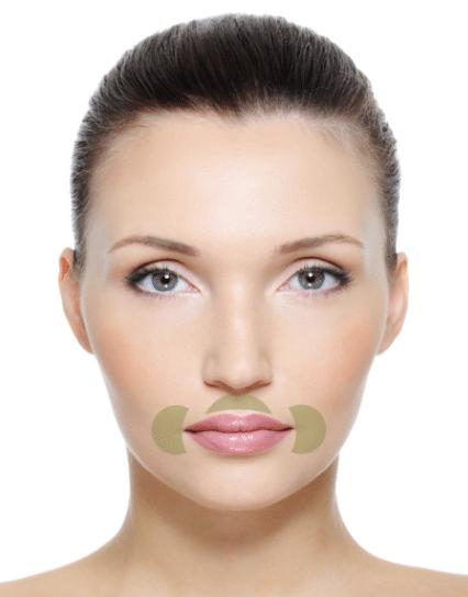 Skin Mapping Mund