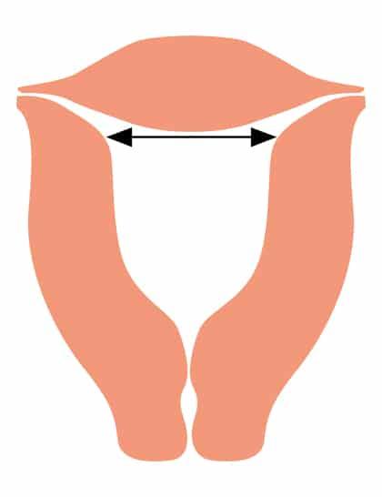 Gebärmutter-Breite