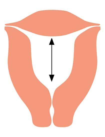 Gebärmutter-Höhe