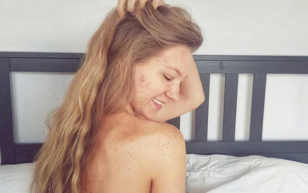 Im Podcast-Interview mit Hanna Bohnekamp: Unreine Haut und Selbstwertgefühl
